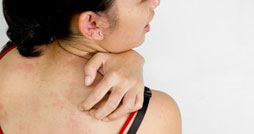 Лечение зуда кожи тела