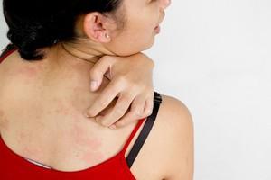 лечение зуда кожи
