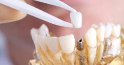 zubnoj-implant